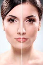mesoterapia facial con vitaminas en paterna